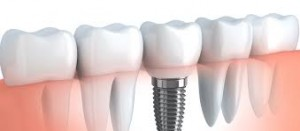 dental implant Hungary